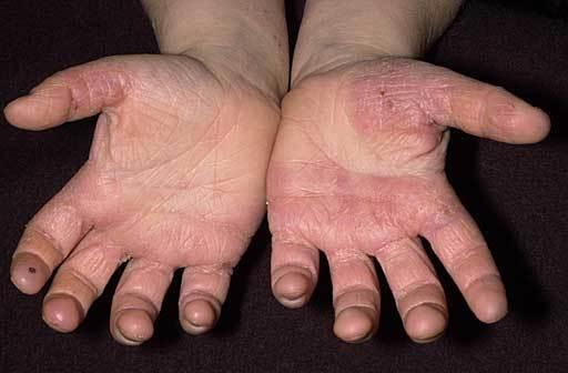 how to clear up hand eczema
