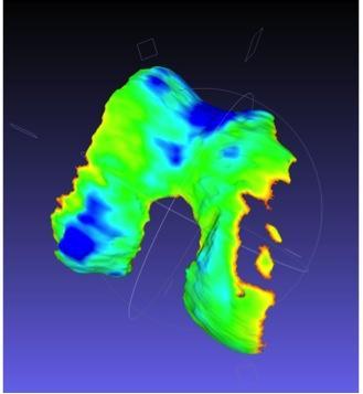 Qmetrics 3D imaging makes cartilage defect easy to spot