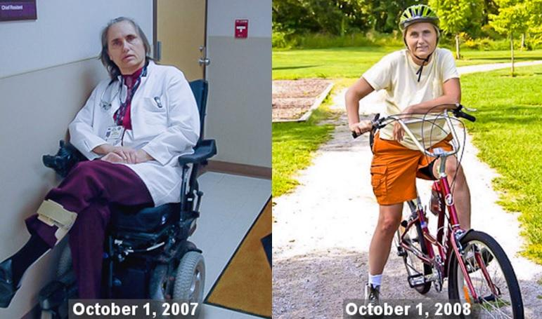 Dr. Terry Wahls: on the left, second stage MS (2007) - on the right, out of the wheelchair (2008)