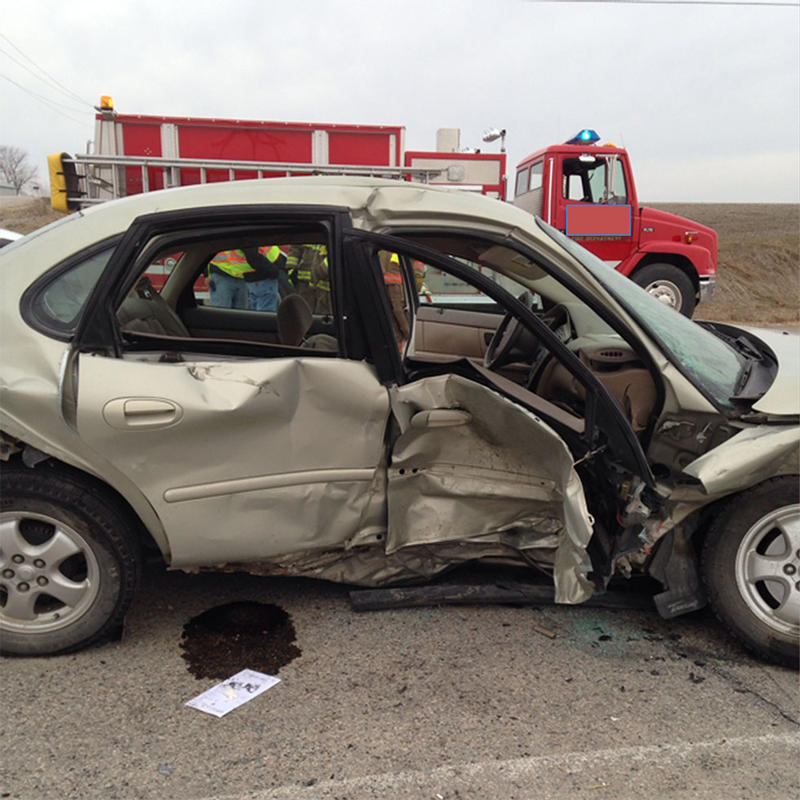 Vehicle crash photos like these taken by personnel in the field help determine treatment