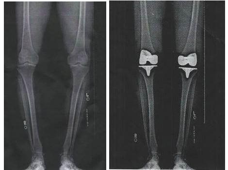 X-rays from before and after a double knee replacement