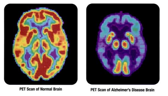 PET scans showing the differences between a normal older adult's brain and the brain of an older adult afflicted with Alzheimer's disease.