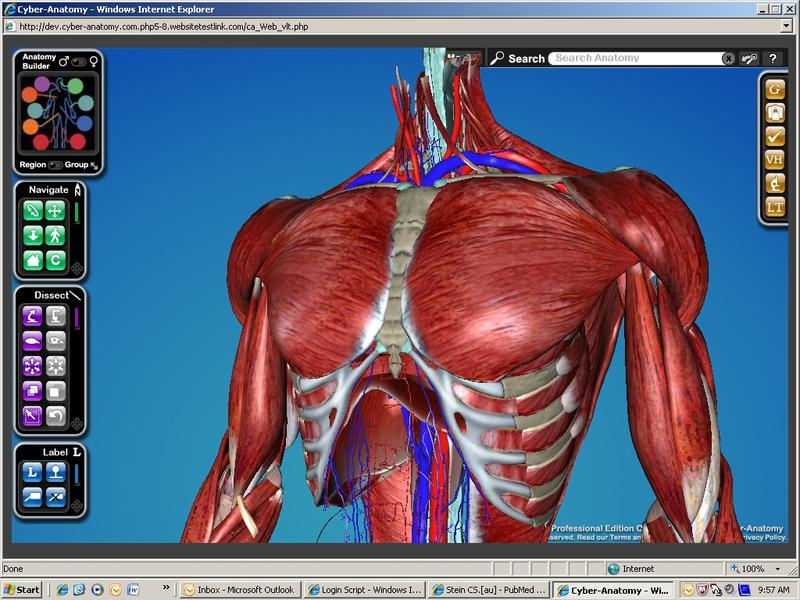 One of the virtual cadaver images used in Darren Hoffman's class at the UI