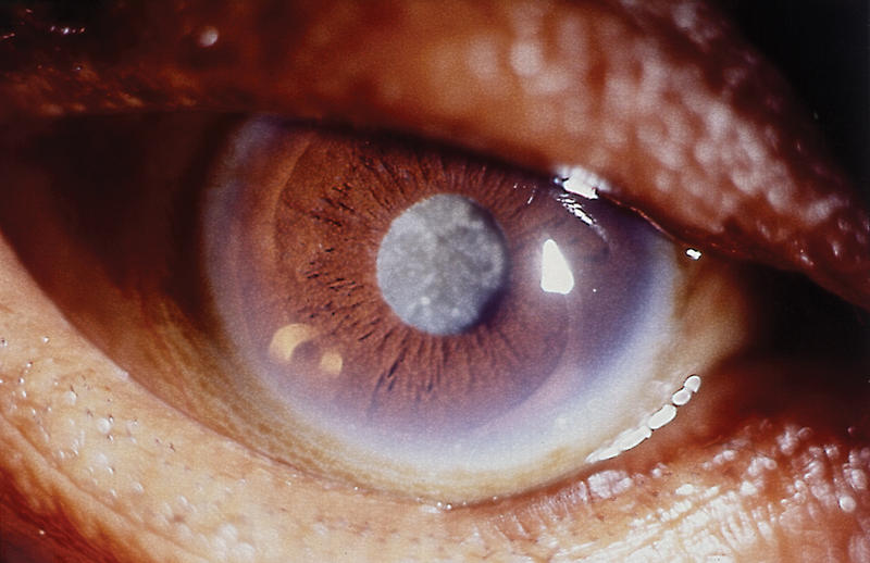 Cataract. Published by the International Centre for Eye Health, London School of Hygiene and Tropical Medicine
