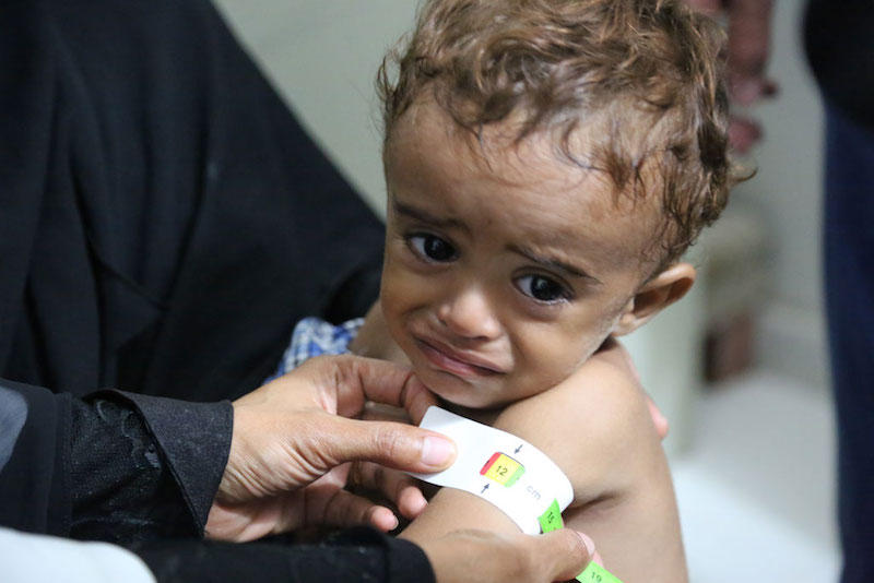 Ahmed, 3 years old, receives treatment for moderate acute malnutrition in a hospital in Hajjah, Yemen.