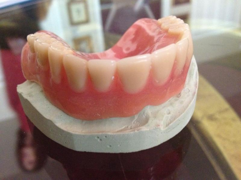 a Larell One Step Denture
