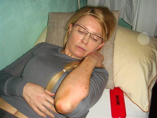 Former Ukrainian Prime Minister Yulia Tymoshenko shows bruises on her body in Kachanovskaya prison in Kharkiv, Ukraine. Some European leaders have boycotted the Euro 2012 soccer tournament as a result of her imprisonment.