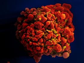 An HIV infected T-Cell