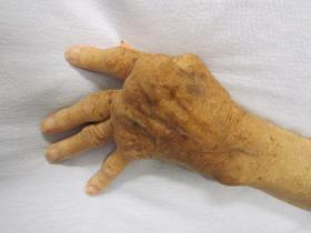 A hand affected by rheumatoid arthritis. Dr. Smith says that with proper treatment and early diagnosis many people can avoid this kind of debilitating arthritis.