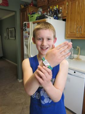 Weston Miller wears a medical bracelet with information about his severe nut allergies.