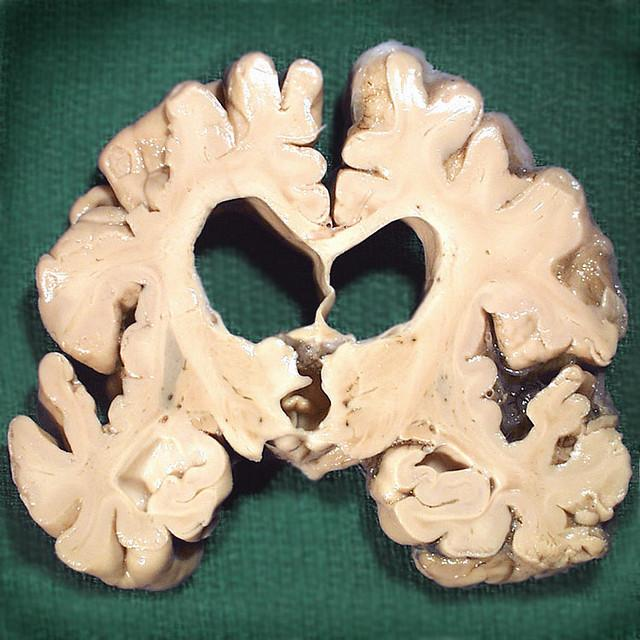 A cross-section of a human brain damaged by Alzheimer's disease.
