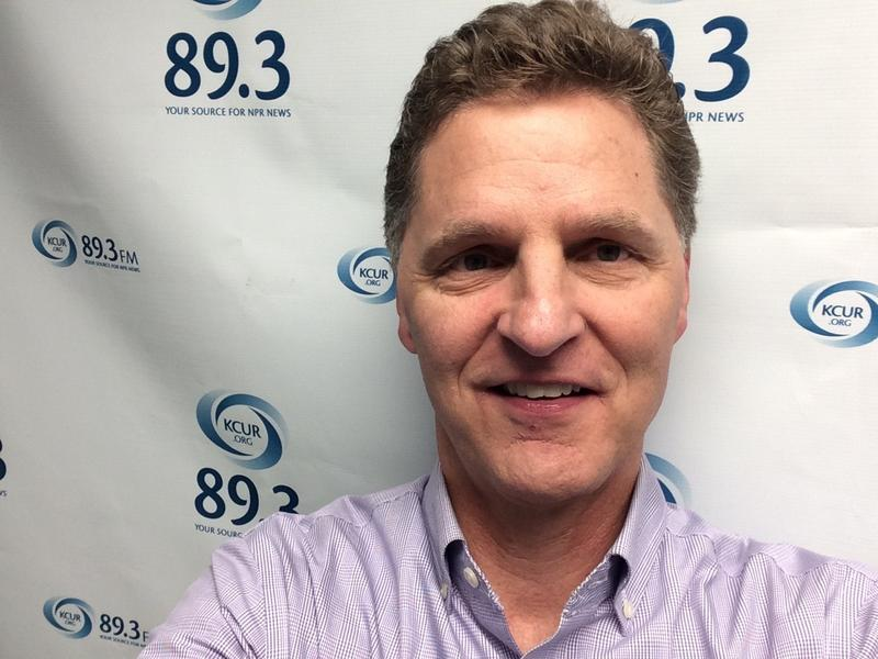 'Yeah, there are a lot of things I'd change, but I wouldn't get surgery,' Up To Date host Steve Kraske says about his selfie.