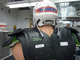 A prototype version of a helmet designed to prevent concussions features rods that tighten on impact.