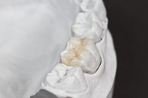 Watch a video demonstration of how 3D imaging makes dental procedures quicker.