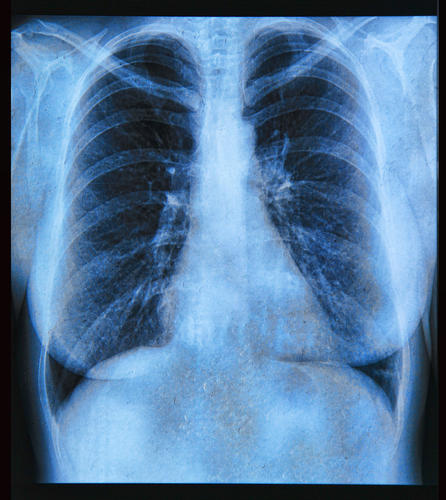 How CT Scans May Help Lower Rate Of Lung Cancer Deaths