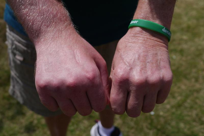 A hand-transplant recipient, Ronnie Thurman, compares his two hands. The right one is a gift from Ian Heidemann of Keller, who was a registered organ donor.