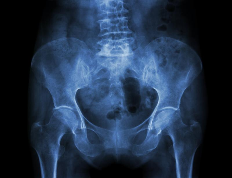 Film X-ray: Pelvis of osteoporosis patient
