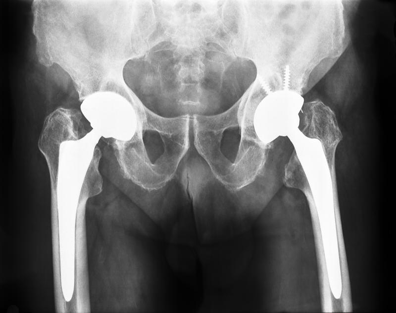 This X-ray shows two hip prostheses that have been implanted.