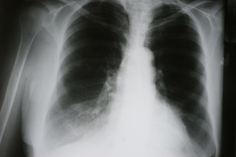 X-ray of cardiac obstructive pulmonary disease (COPD)