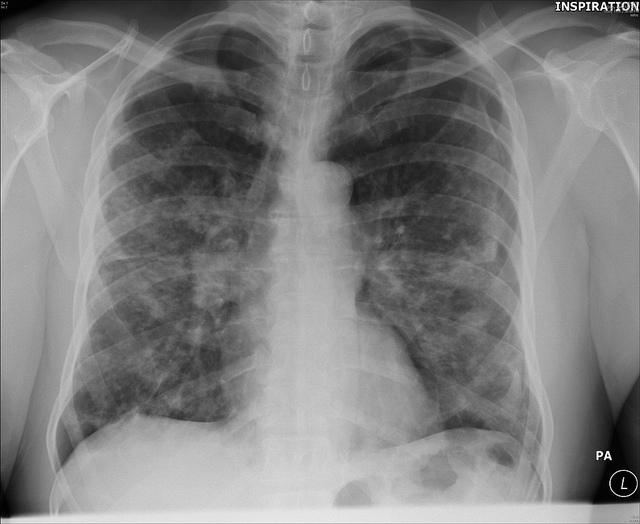 Nodlular lung lesions are reported in up to 4% of cases of sarcoidosis.