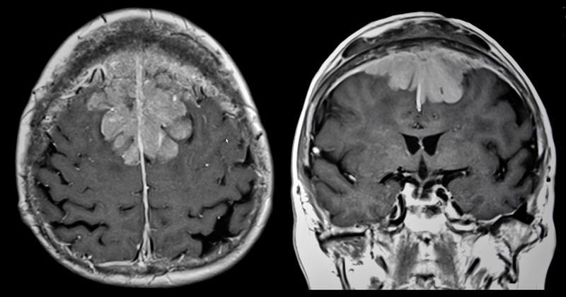 Brain tumor on MRI
