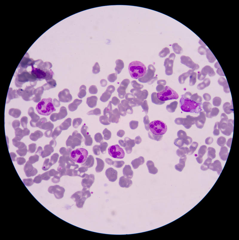 Blood smear from sepsis.septicemia can progress to sepsis.