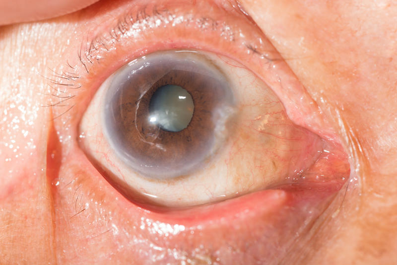 Close-up of the senile cataract during an eye examination