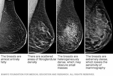 Breast tissue dence