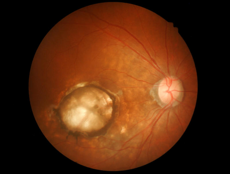 Medical photo: Age-related macular degeneration