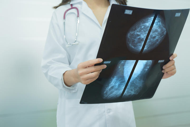 Mammogram film image in doctor's hands.
