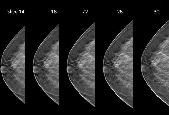 Images from a 3D mammogram