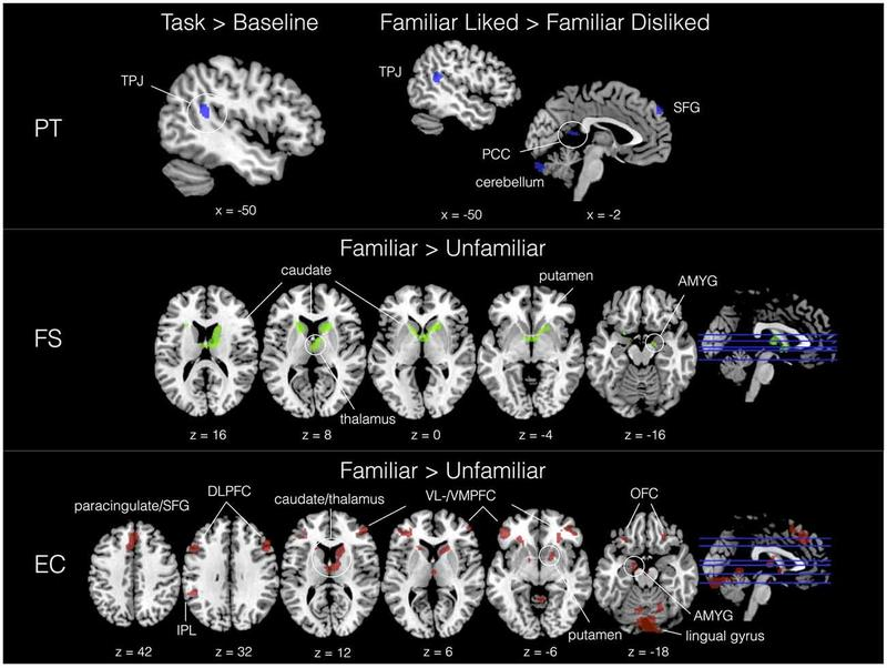 Highly empathetic people tend to show greater activation in the regions of the brain that are associated with social and emotional processing, a new study has found.