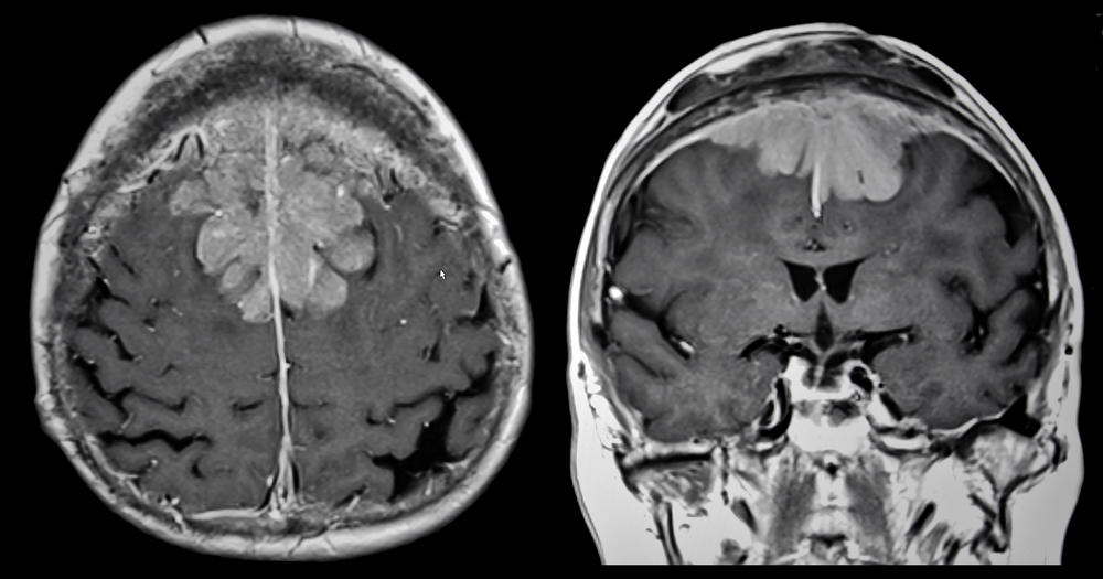 brain scan with tumor - photo #36