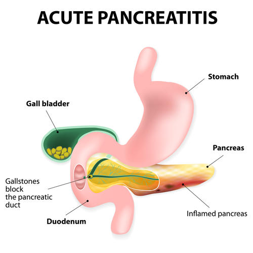 Acute Pancreatitis How Obesity Can Contribute To A Common But