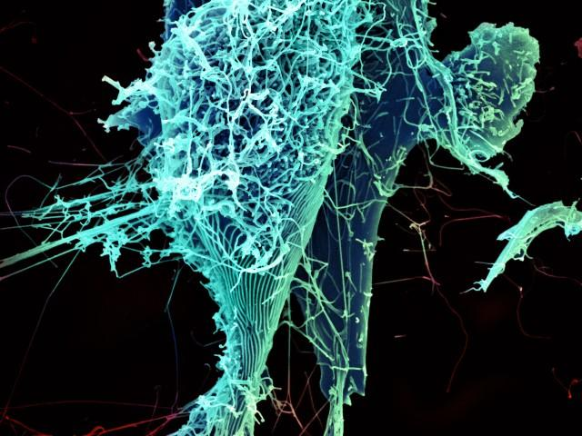 Microscopic image of string-like Ebola virus particles shedding from an infected cell .