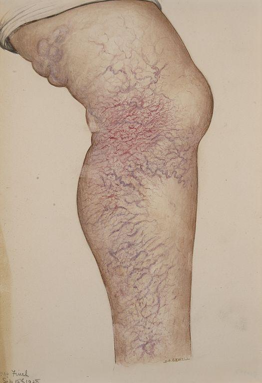 schmerzen in den beinen bei ruhe chemotherapie.jpg