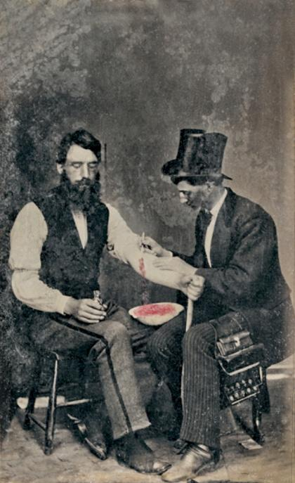 Blood letting image from 1860.