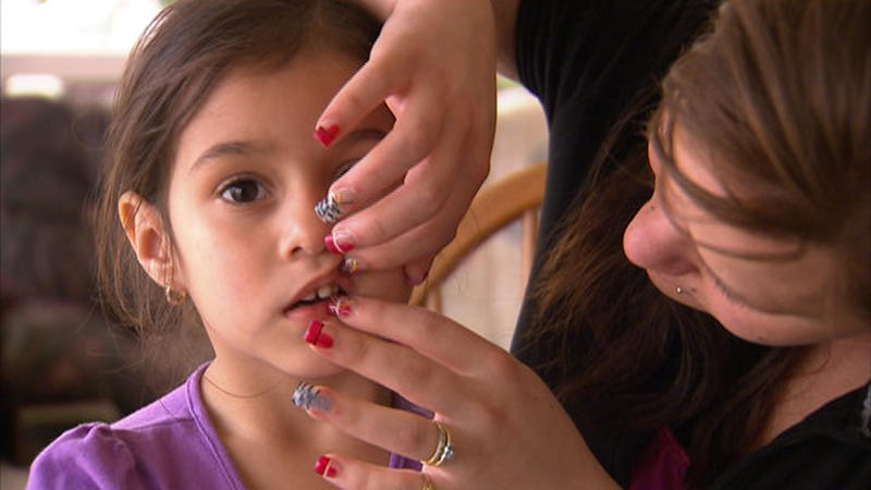 Kari Reyes (right) examines the front teeth of her four-year-old daughter, Marisa.