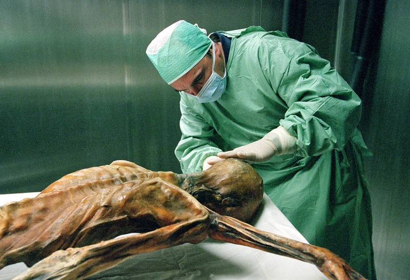 Taking a sample from Otzi in the cold chamber.
