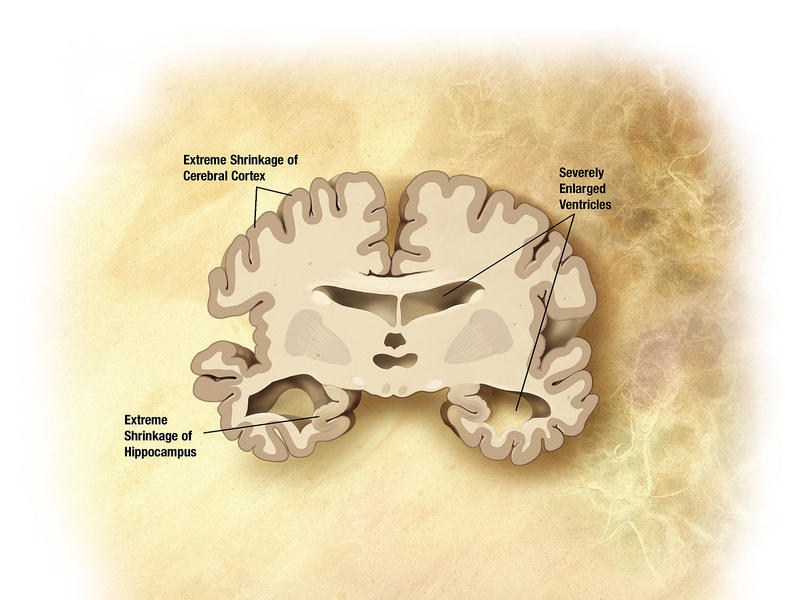 Diagram of the brain of a person with Alzheimer's Disease.
