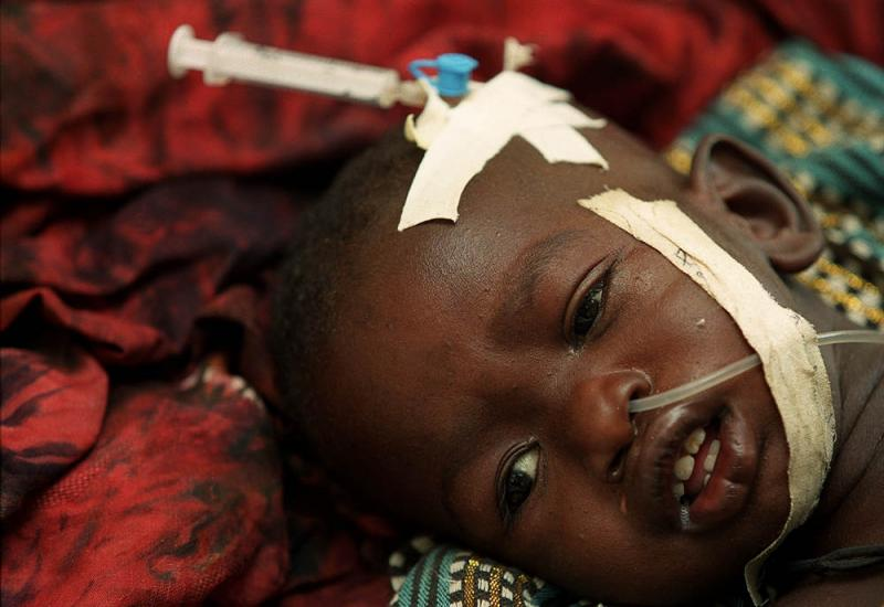 A child with cerebral malaria.