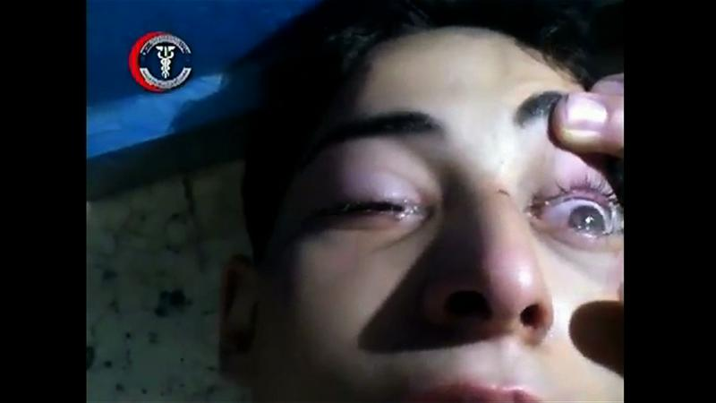 This image from video released by a U.S. government official purportedly shows a young man lying virtually immobile on the floor, having his eyes checked for symptoms of nerve agent exposure in Eastern Gutah in Damascus, Syria.