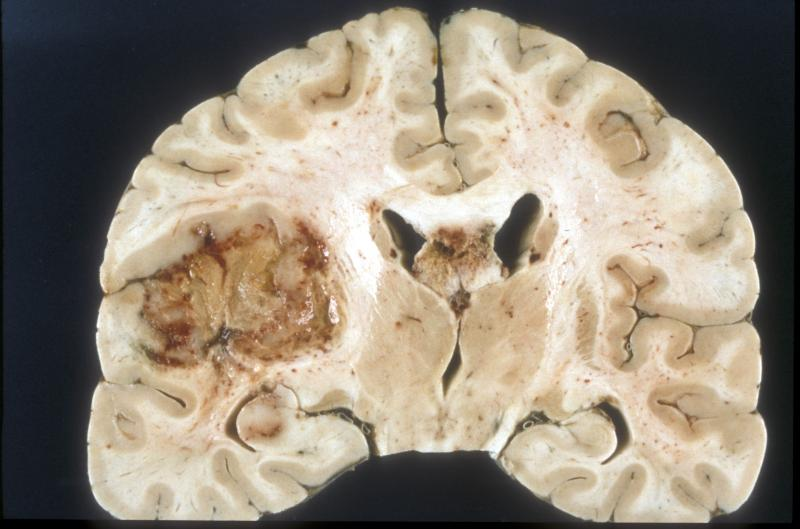 Glioblastoma is teh most common kind of brain tumor, and carries a grim prognosis.