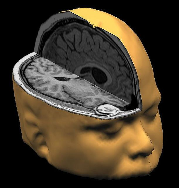 Concussions often don't show up on brain scans.