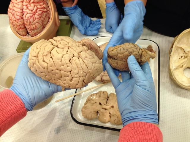 "Human brains, sheep brains and human spinal cords were featured in hands-on exhibits at the ""Brain Awareness Week"" Open House at the UW."