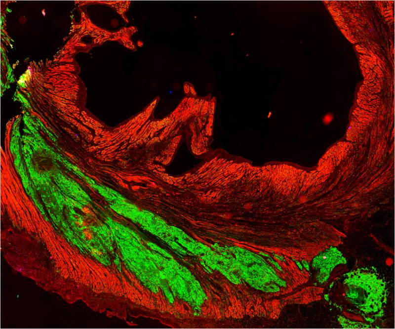 Implanted graft of cells derived from human stem cells (green) meshed and beat with monkeys' heart cells (red).