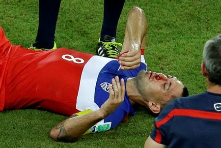 Clint Dempsey suffers a broken nose but keeps playing in the opening World Cup match against Ghana.