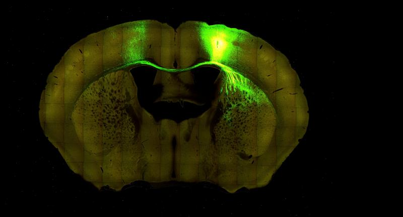 "What the new technology can reveal: a section of a mouse brain that senses 'touch"" lights up, along with its connections to other regions of the brain."