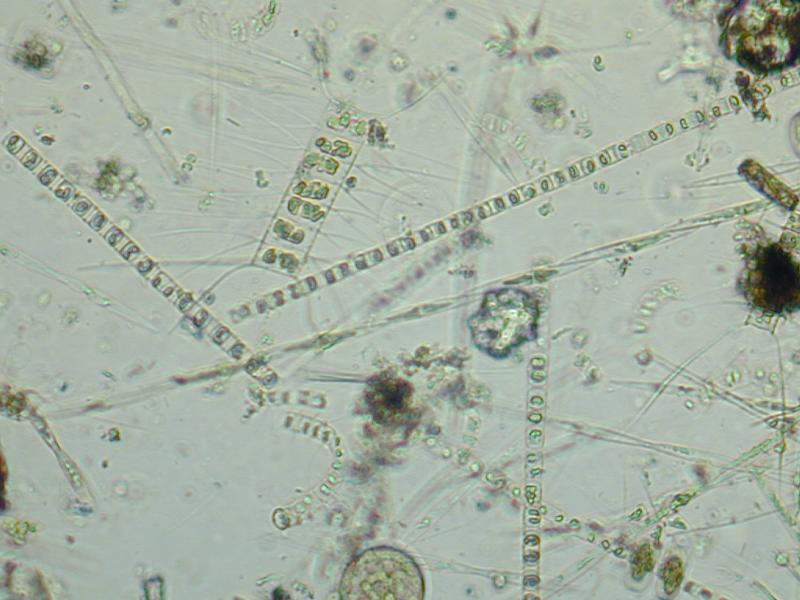 Domoic acid is a neurotoxin produced by phytoplankton, specifically a microscopic diatom  (Pseudonitzschia australis, pictured here) in the ocean.