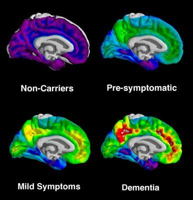 The areas where the most Alzheimer's plaques typically form are highlighted in red and yellow on these brain scans